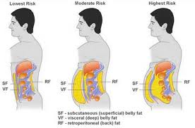 Visceral Fat Vs Subcutaneous Fat 119